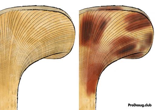 Paxillus involutus - свинушка тонкая с синяками, схема