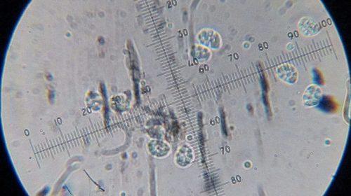 Рядовка горбатая - Tricholoma umbonatum